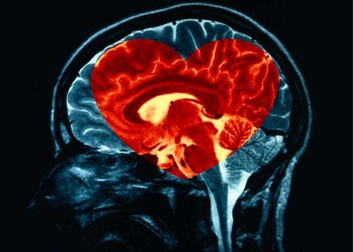 Sydämenmuotoiset aivot