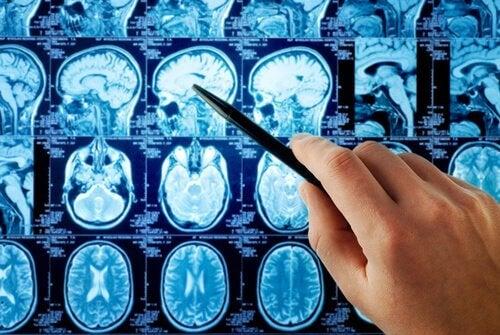 aivoanalyysi