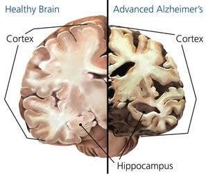 alzheimerin tauti aivot