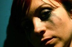 itkevä nainen itsetuhoisuus