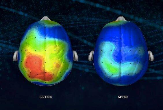 Mietiskely ja aivot