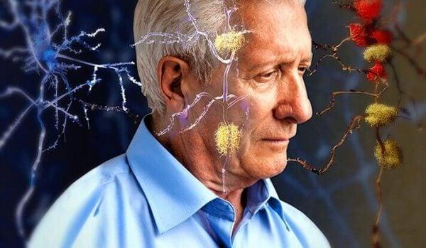 vanhuksella on Alzheimerin tauti