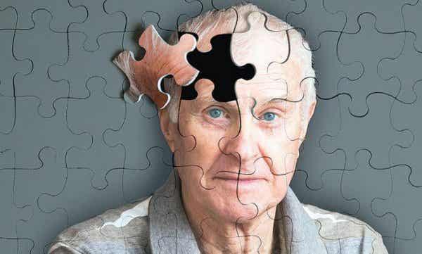 5 varoittavaa merkkiä Alzheimerin taudista