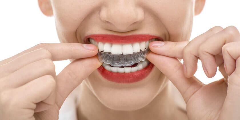 hammasmuotti hampaiden narskutteluun