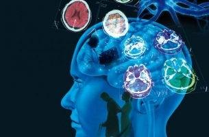 multippeliskleroosipotilaan aivot