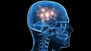 tratsodoni vaikuttaa aivoihin
