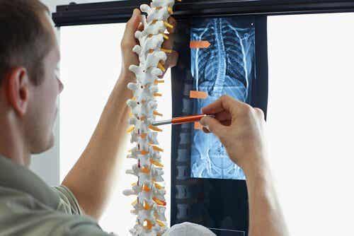 4 harjoitusta skolioosin ehkäisemiseksi