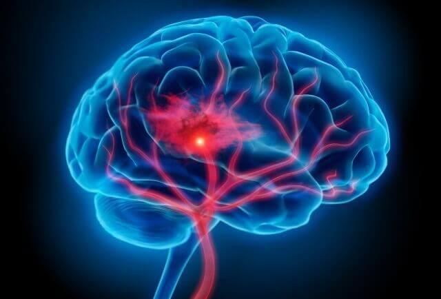 tulehdus aivoissa