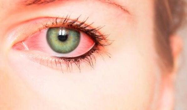 henkisen väkivallan oireet kehossa: verestävät silmät