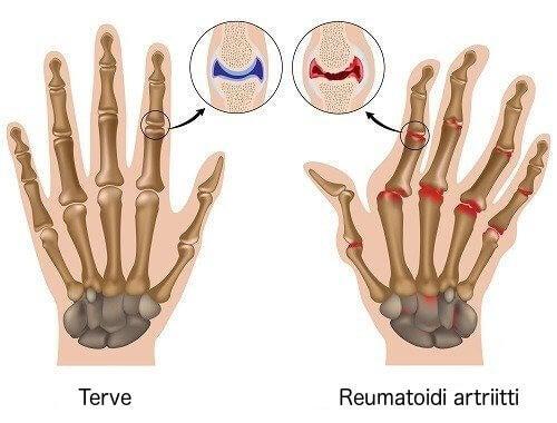 terve käsi ja käsi jossa reumatoidi artriitti