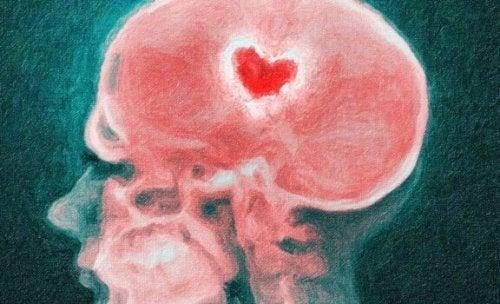 Aivot ja ero: särkyneen sydämen tiedettä