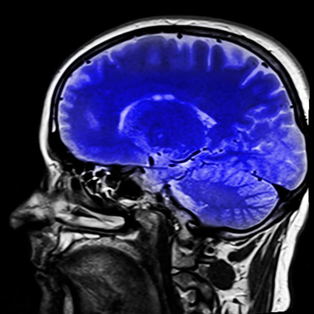 locked-in -oireyhtymä ja aivot