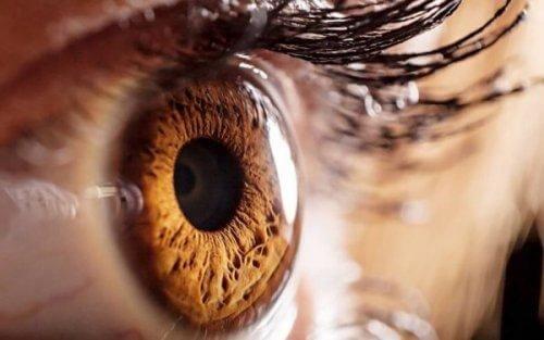 ruskea silmä