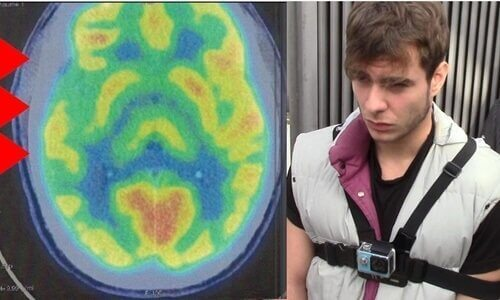 Aivojen poikkeavuus: aivot ja rikollisuus