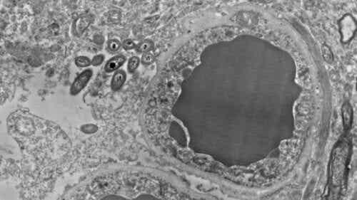 Aivomikrobiomi: ihmisaivojen suolistobakteeri