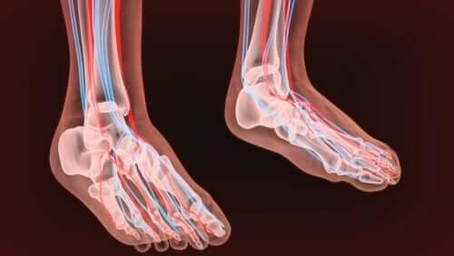 neuropaattinen kipu jaloissa