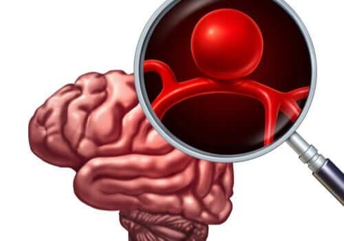 aivoaneurysma lähikuva