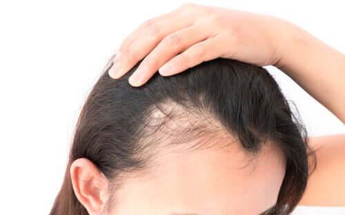 Alopecian psykologiset vaikutukset ovat naisilla lähes aina negatiivisia