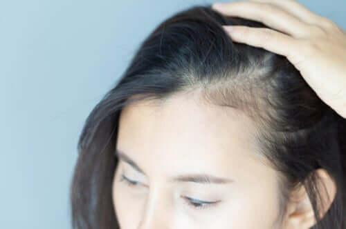 Alopecian psykologiset vaikutukset naisiin