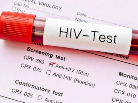 Säännölliset HIV-verikokeet auttavat sekä diagnoosin varhaisessa havaitsemisessa että ehkäisevät tartunnan leviämistä ihmisestä toiseen