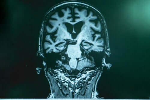 Tohtori Francisco Lopera on raivannut uutta tietä alan tutkimukselle ja luultavasti myös Alzheimerin taudin hoidolle