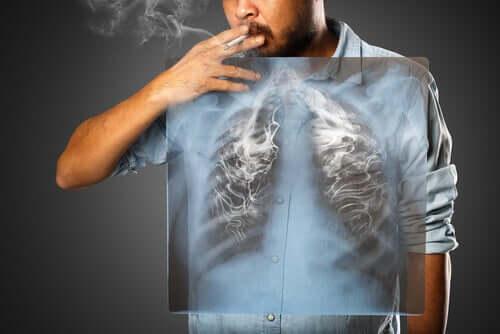 Mies tupakoi ja hänen keuhkonsa savuavat.
