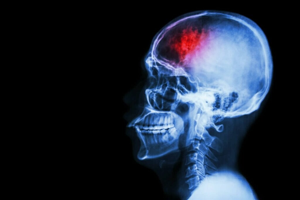 Aivohalvaus on häiriö, joka voi jättää jälkeensä vakavia jälkiseurauksia ja jopa keskivaikean tai vaikean toimintarajoitteisuuden