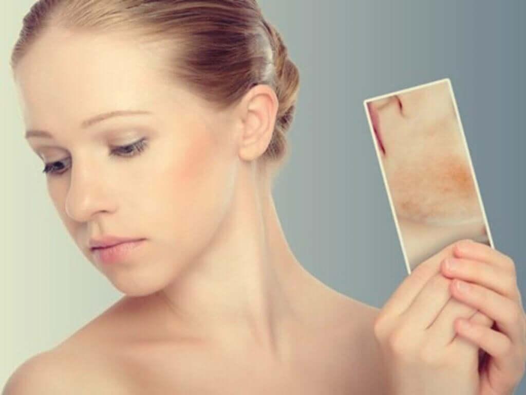 Stressin aiheuttamat läiskät: kun iho reagoi tunteisiin